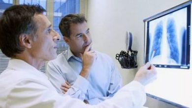 Photo of Что понимается под острым профессиональным заболеванием: какие положены компенсации за счет работодателя и ФСС, размер